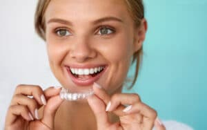 questions about invisalign 1080x675 1 Discover Greece in the UK